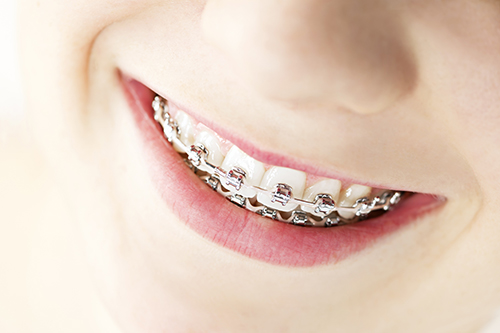 Adult Braces in St. Charles