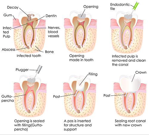 Root Canals in St. Charles